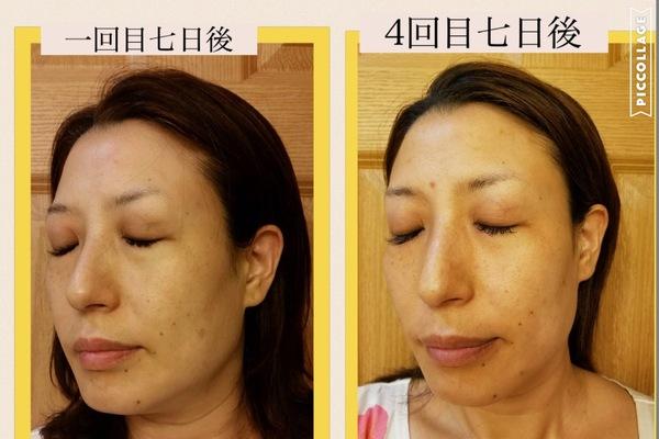 幹細胞培養液導入コース☆福岡初女性専用理美容室☆チーフのBlog