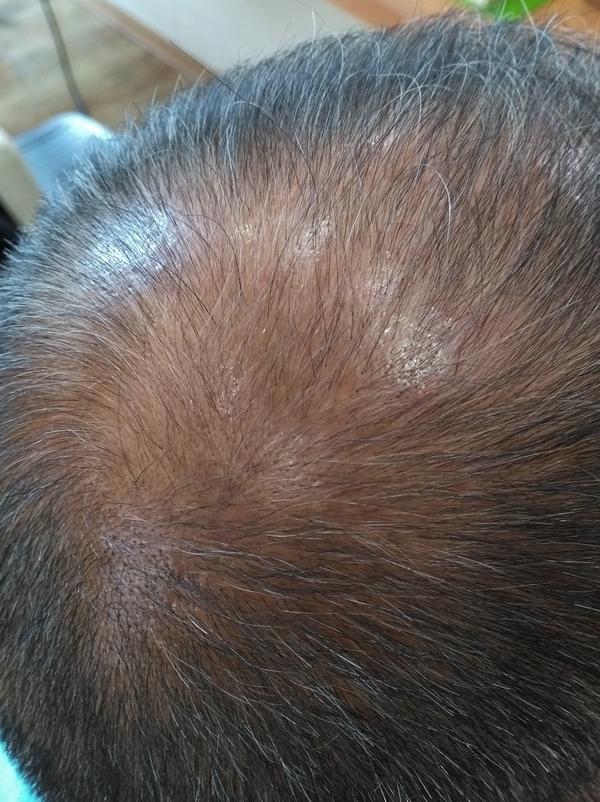 ヒト幹細胞培養液による育毛技術 「HairFarm」の真髄2弾!  福岡 南区 高宮 育毛 発毛 サロン メンズ